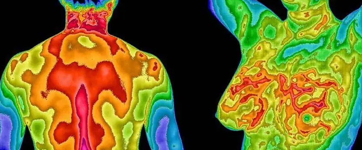 Clinical thermography